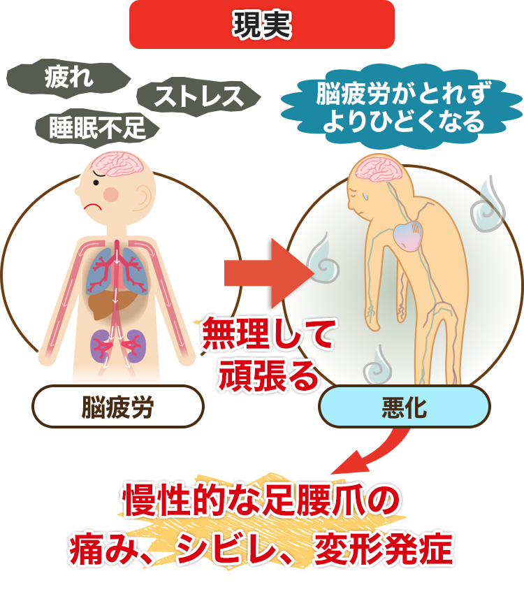 慢性的な足腰爪の痛み、シビレ、変形発症
