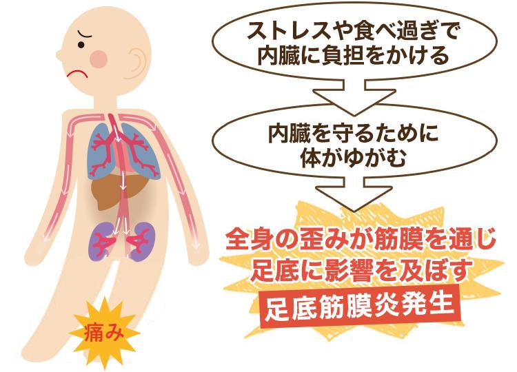 内臓が原因の足底筋膜炎