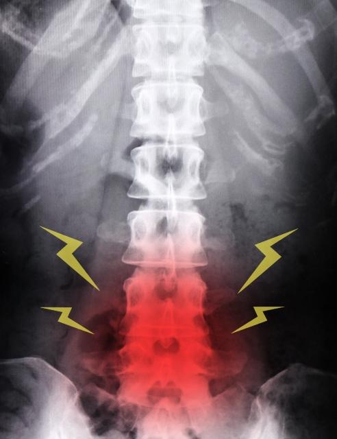 変形性脊椎症と言われた方、あきらめるのはまだ早い、骨盤王国小倉店で健康を手に入れませんか?
