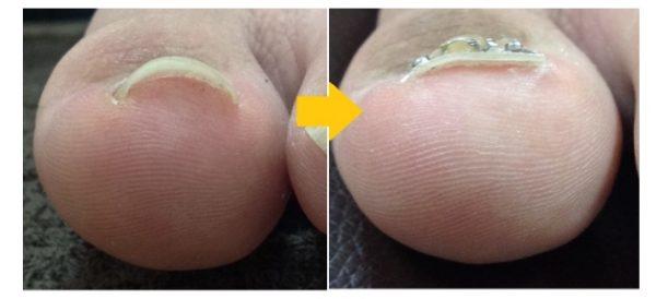 爪の痛みで切ることさえもできなかったです
