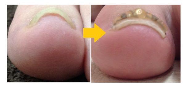 靴を履くと爪に痛みが出ていました