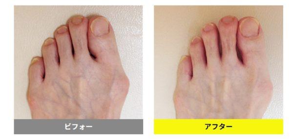 どんな靴を履いても痛かった親指が、好きな靴を履ける親指に