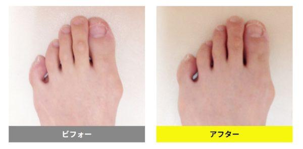 急に痛み出した外反母趾が1回で歪みが整い痛みも解消
