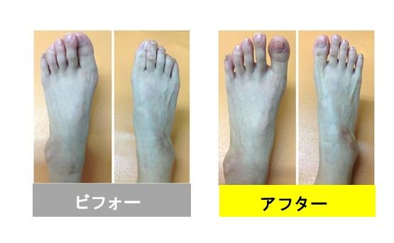 痛くて仕事に支障が出ていた外反母趾が8回で改善(^^)/